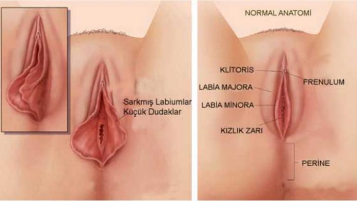 Kadın Genital Estetik Ameliyatları