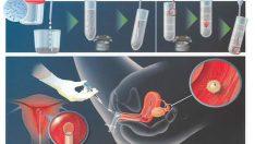 Tüp Bebek Aşılama Nasıl Yapılır?