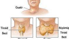 Guatr Hastalığı Ve Nedenleri