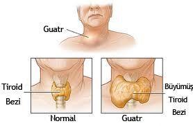 guatr (1)