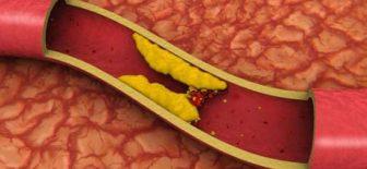 Kolesterol Ve Yüksek Kolesterol Belirtileri
