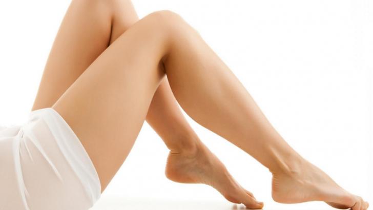 Bacaklardaki lekeler nasıl geçer ?