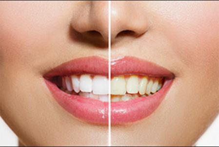 Kırmızı, bordo, mor tonlarındaki içinde mavi rengin bulunduğu rujlar; dişlerinizin daha beyaz görünmesine yardımcı olur.