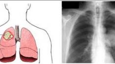 Akçiğer Kanseri Belirtileri Nelerdir?