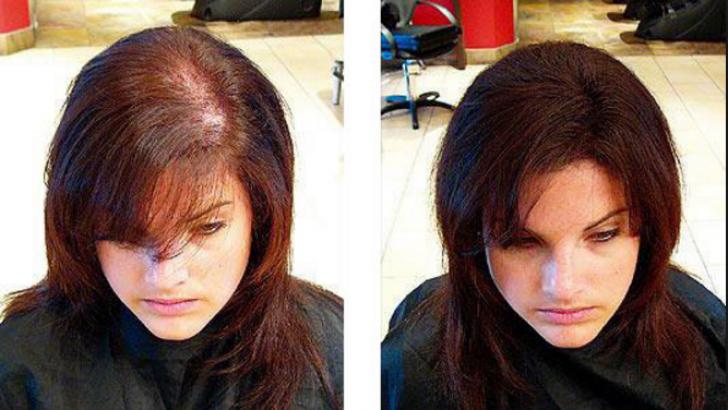 Artık Kadınlarda Saç Ekimi Yaptırıyor
