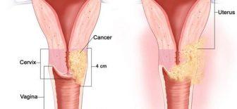 Rahim Kanseri Belirtileri ve Bulguları