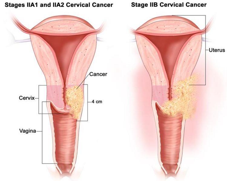 Rahim Kanseri Belirtileri-Rahim kanseri olan kadınlar aşağıdaki belirtilerle veya işaretlerle karşılaşabilir. Bazen, rahim kanseri olan kadınlarda bu belirtilerden herhangi biri görülebilir