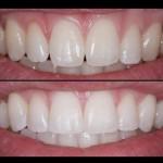 Diş Estetiği - Bonding Uygulaması Nedir?