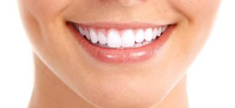 Dişlerdeki Şekil Bozuklukları Bonding yöntemiyle gideriliyor