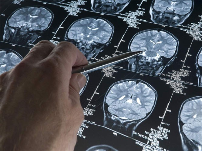 Epilepsi Nedir & Tedavi Yolları Nelerdir?