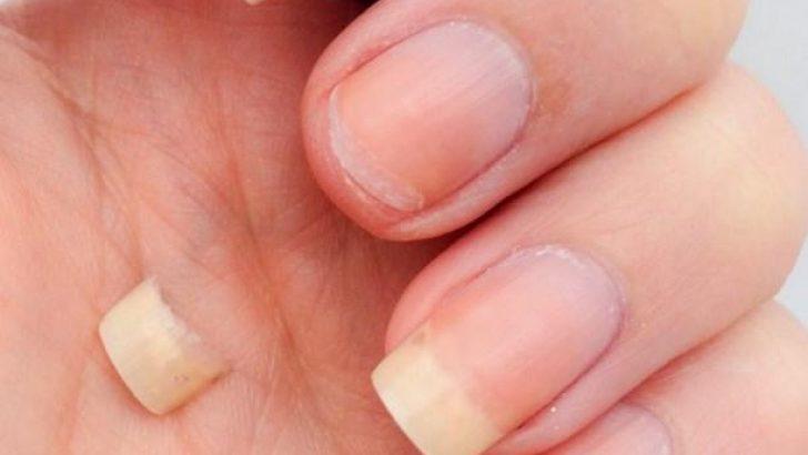 Tırnak Kırılması ve Tırnak Bakımı Önerileri