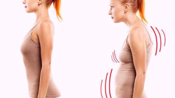 Hamilelikte Bunu Yapmak Duruş Bozukluğu İçin Çok Faydalı