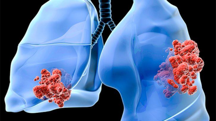 Akciğer Kanseri'nin En Önemli Belirtileri Nelerdir?