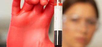Artık Kanser Teşhisi 10 yıl Önceden Kan Testi İle Belirlenebilecek