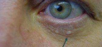 Yağ Bezesi Nasıl Geçer & Tedavisi ve Ameliyatı Nasıl Yapılır?