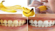 Muzun Faydaları Muz Kabuğunun Diş Beyazlattığını Biliyormusunuz?