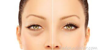 Göz Altı Torbaları Neden Olur? Göz Altı Morlukları Tedavisi
