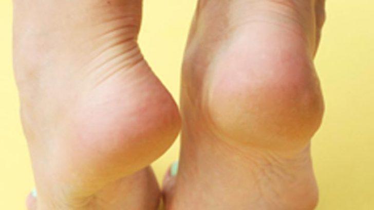 Topuk Çatlağına Ne İyi Gelir? Topuk Çatlakları İçin Etkili Yöntem