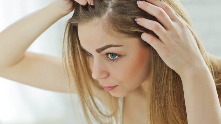 Saçtaki Kepeğe Ne İyi Gelir? Saç Kepeğini Önlemek İçin Aspirin Yöntemi