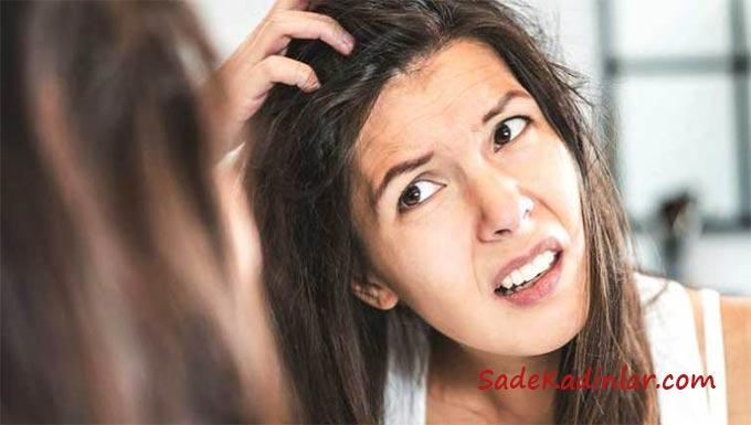 Saçtaki Kepeğe Ne İyi GelirKepeği Önleyici Aspirin Yöntemi