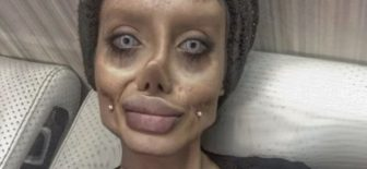 Angelina Jolie'ye Benzemek İsteyen Kadının Estetik Faciası