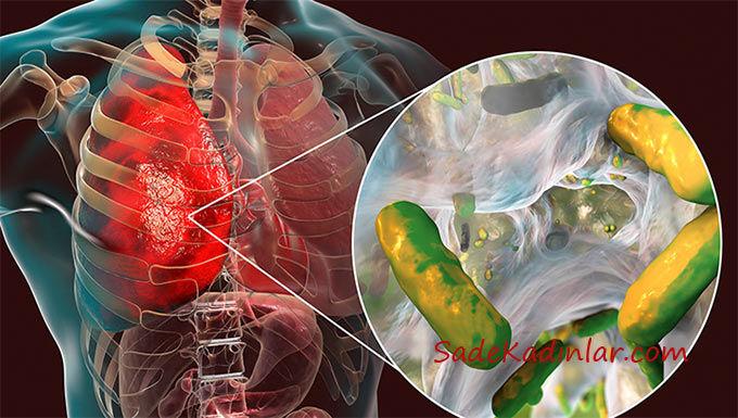 Kistik fibrozis Belirtileri Nelerdir